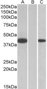 FANCF Antibody - HEK293 lysate (10ug protein in RIPA buffer) overexpressing Human FANCF with C-terminal MYC tag probed with (1ug/ml) in Lane A and probed with anti-MYC Tag (1/1000) in lane C. Mock-transfected HEK293 probed (1mg/ml) in Lane B. Primary