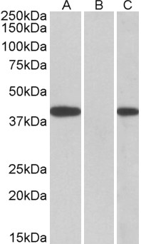 FANCF Antibody - HEK293 lysate (10ug protein in RIPA buffer) overexpressing Human FANCF with C-terminal MYC tag probed with (0.5ug/ml) in Lane A and probed with anti-MYC Tag (1/1000) in lane C. Mock-transfected HEK293 probed (1mg/ml) in Lane B. Prima