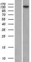 FANCI Protein - Western validation with an anti-DDK antibody * L: Control HEK293 lysate R: Over-expression lysate