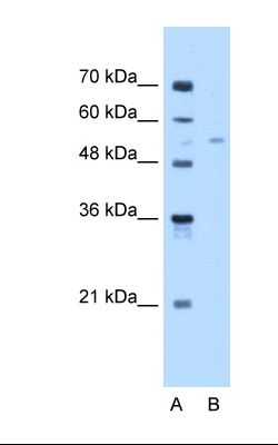 Lane A: Marker. Lane B: Jurkat cell lysate. Antibody concentration: 1.0 ug/ml. Gel concentration: 12%.  This image was taken for the unconjugated form of this product. Other forms have not been tested.