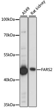 FARS2 Antibody - Western blot analysis of extracts of various cell lines, using FARS2 antibody at 1:1000 dilution. The secondary antibody used was an HRP Goat Anti-Rabbit IgG (H+L) at 1:10000 dilution. Lysates were loaded 25ug per lane and 3% nonfat dry milk in TBST was used for blocking. An ECL Kit was used for detection and the exposure time was 15s.