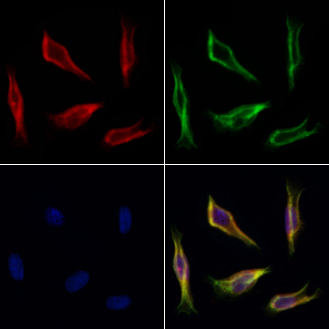 FARS2 Antibody - Staining HeLa cells by IF/ICC. The samples were fixed with PFA and permeabilized in 0.1% Triton X-100, then blocked in 10% serum for 45 min at 25°C. Samples were then incubated with primary Ab(1:200) and mouse anti-beta tubulin Ab(1:200) for 1 hour at 37°C. An AlexaFluor594 conjugated goat anti-rabbit IgG(H+L) Ab(1:200 Red) and an AlexaFluor488 conjugated goat anti-mouse IgG(H+L) Ab(1:600 Green) were used as the secondary antibod