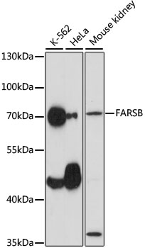 FARSB Antibody - Western blot analysis of extracts of various cell lines, using FARSB antibody at 1:1000 dilution. The secondary antibody used was an HRP Goat Anti-Rabbit IgG (H+L) at 1:10000 dilution. Lysates were loaded 25ug per lane and 3% nonfat dry milk in TBST was used for blocking. An ECL Kit was used for detection and the exposure time was 30s.