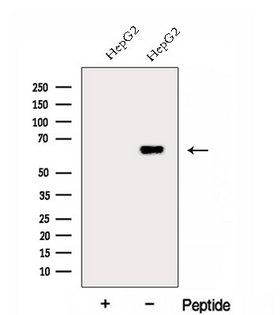FARSB Antibody - Western blot analysis of extracts of COLO205 cells using FARSB antibody. The lane on the left was treated with blocking peptide.