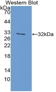 Western blot of recombinant FASN / Fatty Acid Synthase.