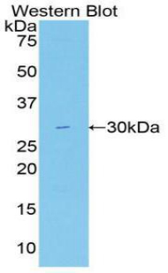 FASN / Fatty Acid Synthase Antibody - Western blot of recombinant FASN / Fatty Acid Synthase.  This image was taken for the unconjugated form of this product. Other forms have not been tested.