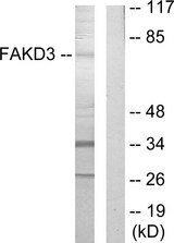 Western blot analysis of lysates from HepG2 cells, using FAKD3 Antibody. The lane on the right is blocked with the synthesized peptide.