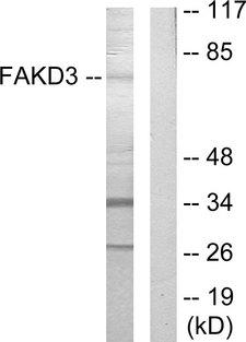 FASTKD3 Antibody - Western blot analysis of lysates from HepG2 cells, using FAKD3 Antibody. The lane on the right is blocked with the synthesized peptide.