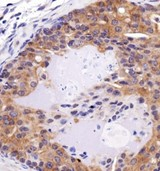 FAT4 Antibody - Immunohistochemistry: FAT4 Antibody - IHC of FAT4 in mouse prostate cancer using DAB with hematoxylin counterstain.  This image was taken for the unconjugated form of this product. Other forms have not been tested.