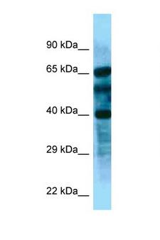 FBL8 / FBXL8 Antibody - FBXL8 antibody Western blot of Fetal Kidney lysate. Antibody concentration 1 ug/ml.  This image was taken for the unconjugated form of this product. Other forms have not been tested.