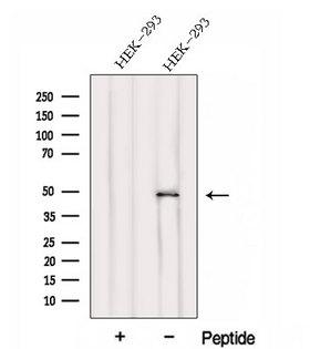 FBLIM1 / Migfilin Antibody - Western blot analysis of extracts of HEK293 cells using FBLIM1 antibody. The lane on the left was treated with blocking peptide.