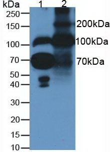 Western Blot; Samples. Lane1: Human Serum; Lane2: Rat Placenta Tissue;