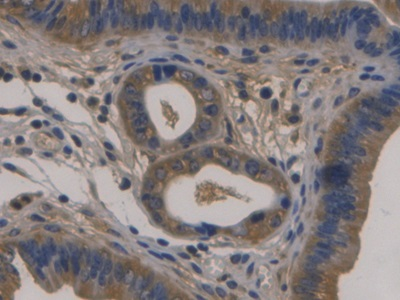 DAB staining on IHC-P; Samples: Mouse Uterus Tissue