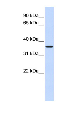FBP2 antibody Western blot of Fetal Muscle lysate. This image was taken for the unconjugated form of this product. Other forms have not been tested.
