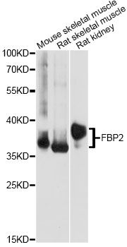 Western blot analysis of extracts of various cell lines, using FBP2 antibody at 1:1000 dilution. The secondary antibody used was an HRP Goat Anti-Rabbit IgG (H+L) at 1:10000 dilution. Lysates were loaded 25ug per lane and 3% nonfat dry milk in TBST was used for blocking. An ECL Kit was used for detection and the exposure time was 10s.