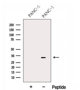FBXO27 Antibody - Western blot analysis of extracts of PANC-1 cells using FBXO27 antibody. The lane on the left was treated with blocking peptide.