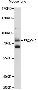 FBXO42 / JFK Antibody - Western blot analysis of extracts of mouse lung, using FBXO42 antibody at 1:1000 dilution. The secondary antibody used was an HRP Goat Anti-Rabbit IgG (H+L) at 1:10000 dilution. Lysates were loaded 25ug per lane and 3% nonfat dry milk in TBST was used for blocking. An ECL Kit was used for detection and the exposure time was 90s.