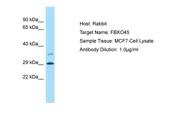 FBXO45 Antibody -  This image was taken for the unconjugated form of this product. Other forms have not been tested.