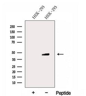 FBXW2 Antibody - Western blot analysis of extracts of HEK293 cells using FBXW2 antibody. The lane on the left was treated with blocking peptide.