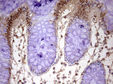 IHC of paraffin-embedded Human colon tissue using anti-FBXW7 mouse monoclonal antibody. (Heat-induced epitope retrieval by 10mM citric buffer, pH6.0, 120°C for 3min).