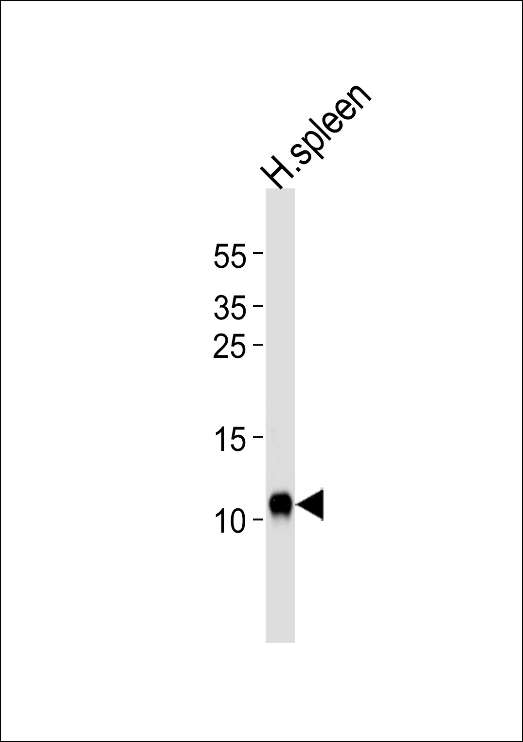 Western blot of lysate from human spleen tissue lysate, using FCER1G Antibody. Antibody was diluted at 1:1000 at each lane. A goat anti-rabbit IgG H&L (HRP) at 1:5000 dilution was used as the secondary antibody. Lysate at 35ug per lane.