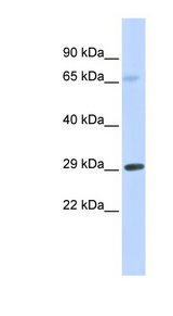 FCER1A antibody Western blot of Fetal Muscle lysate. This image was taken for the unconjugated form of this product. Other forms have not been tested.