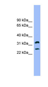 FCER1A antibody Western blot of 721_B cell lysate. This image was taken for the unconjugated form of this product. Other forms have not been tested.