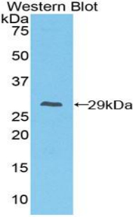 FCGR1A / CD64 Antibody - Western blot of recombinant FCGR1A / CD64.  This image was taken for the unconjugated form of this product. Other forms have not been tested.