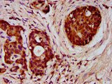Immunohistochemistry image at a dilution of 1:300 and staining in paraffin-embedded human pancreatic cancer performed on a Leica BondTM system. After dewaxing and hydration, antigen retrieval was mediated by high pressure in a citrate buffer (pH 6.0) . Section was blocked with 10% normal goat serum 30min at RT. Then primary antibody (1% BSA) was incubated at 4 °C overnight. The primary is detected by a biotinylated secondary antibody and visualized using an HRP conjugated SP system.