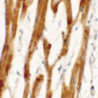 FCHO2 Antibody - Immunohistochemistry of FCHO2 in human heart tissue with FCHO2 antibody at 2.5 ug/ml.