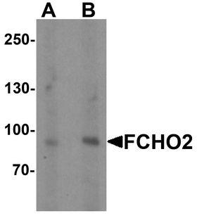 FCHO2 Antibody - Western blot analysis of FCHO2 in rat heart tissue lysate with FCHO2 antibody at (A) 1 and (B) 2 ug/ml