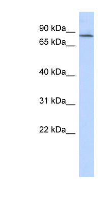 APBB2 antibody Western blot of Fetal Lung lysate. This image was taken for the unconjugated form of this product. Other forms have not been tested.