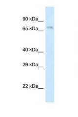 APBB2 antibody Western blot of Rat Liver lysate. Antibody concentration 1 ug/ml.  This image was taken for the unconjugated form of this product. Other forms have not been tested.