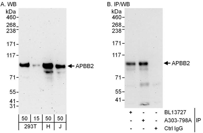 Detection of Human APBB2 by Western Blot and Immunoprecipitation. Samples: Whole cell lysate from 293T (15 and 50 ug for WB; 1 mg for IP, 20% of IP loaded), HeLa (H; 50 ug) and Jurkat (J; 50 ug) cells. Antibodies: Affinity purified rabbit anti-APBB2 antibody used for WB at 0.4 ug/ml (A) and 1 ug/ml (B) and used for IP at 6 ug/mg lysate. APBB2 was also immunoprecipitated by rabbit anti-APBB2 antibody BL13727, which recognizes an upstream epitope. Detection: Chemiluminescence with exposure times of 3 minutes (A) and 30 seconds (B).