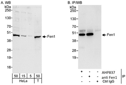 FEN1 Antibody - Detection of human Fen1 in whole cell lysates of HeLa and 293T cells (5-50 ug/lane) by Western blotting with Rabbit anti-Human Fen1 (RABBIT ANTI HUMAN FEN1). Immunoprecipitation was with RABBIT ANTI HUMAN FEN1 (3 ug/mg lysate) or another anti-Fen1 polyclonal antibody, subsequent detection of immunoprecipitated Fen1 by Western blotting used RABBIT ANTI HUMAN FEN1.