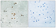 Immunohistochemistry analysis of paraffin-embedded human brain, using FER (Phospho-Tyr402) Antibody. The picture on the right is blocked with the phospho peptide.