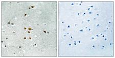 FER Antibody - Immunohistochemistry analysis of paraffin-embedded human brain, using FER (Phospho-Tyr402) Antibody. The picture on the right is blocked with the phospho peptide.