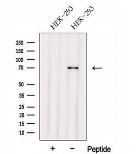 FERMT1 / Kindlin Antibody - Western blot analysis of extracts of HEK293 cells using FERMT1 antibody. The lane on the left was treated with blocking peptide.