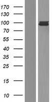 FES Protein - Western validation with an anti-DDK antibody * L: Control HEK293 lysate R: Over-expression lysate