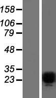 FEV / PET1 Protein - Western validation with an anti-DDK antibody * L: Control HEK293 lysate R: Over-expression lysate
