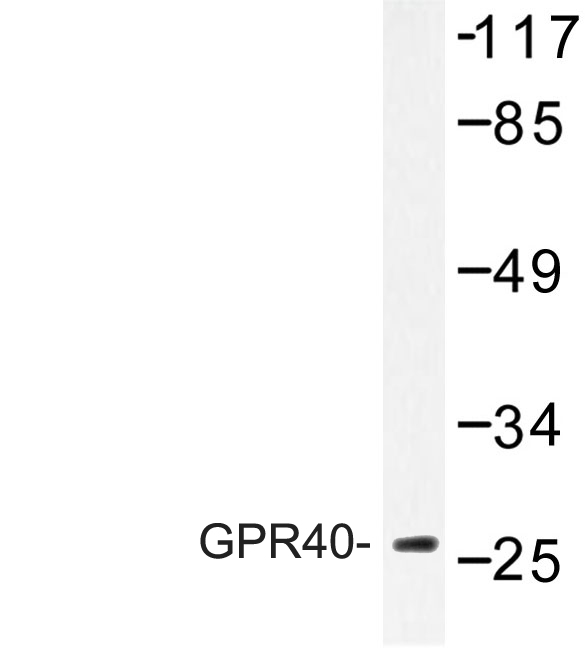 Western blot of GPR40 (W224) pAb in extracts from COS-7 cells treated with forskolin 40nM 30'.