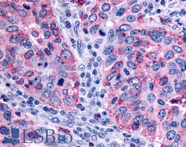 Anti-FFAR2 / GPR43 antibody IHC of human lung carcinoma. Immunohistochemistry of formalin-fixed, paraffin-embedded tissue after heat-induced antigen retrieval.