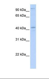 FGD1 Antibody - Transfected 293T cell lysate. Antibody concentration: 1.0 ug/ml. Gel concentration: 12%.  This image was taken for the unconjugated form of this product. Other forms have not been tested.