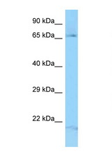 FGD3 antibody Western blot of Fetal Lung lysate. Antibody concentration 1 ug/ml.  This image was taken for the unconjugated form of this product. Other forms have not been tested.