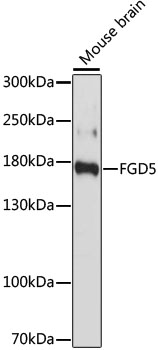 FGD5 Antibody - Western blot analysis of extracts of Mouse brain, using FGD5 antibody at 1:1000 dilution. The secondary antibody used was an HRP Goat Anti-Rabbit IgG (H+L) at 1:10000 dilution. Lysates were loaded 25ug per lane and 3% nonfat dry milk in TBST was used for blocking. An ECL Kit was used for detection and the exposure time was 60s.