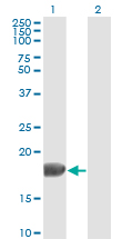 Western blot of FGF1 expression in transfected 293T cell line by FGF1 monoclonal antibody clone 2E12.