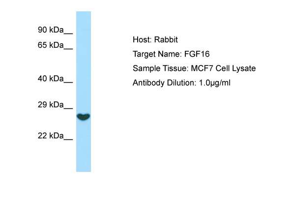 FGF16 Antibody -  This image was taken for the unconjugated form of this product. Other forms have not been tested.