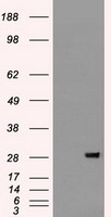 FGF2 / Basic FGF Antibody - HEK293T cells were transfected with the pCMV6-ENTRY control (Left lane) or pCMV6-ENTRY BFGF (Right lane) cDNA for 48 hrs and lysed. Equivalent amounts of cell lysates (5 ug per lane) were separated by SDS-PAGE and immunoblotted with anti-BFGF.