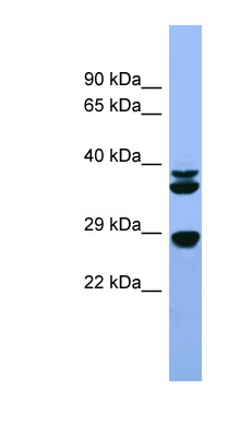 FGF3 antibody western blot of Rat Liver lysate.  This image was taken for the unconjugated form of this product. Other forms have not been tested.