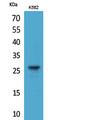 Western Blot analysis of extracts from K562 cells using FGF8 Antibody.